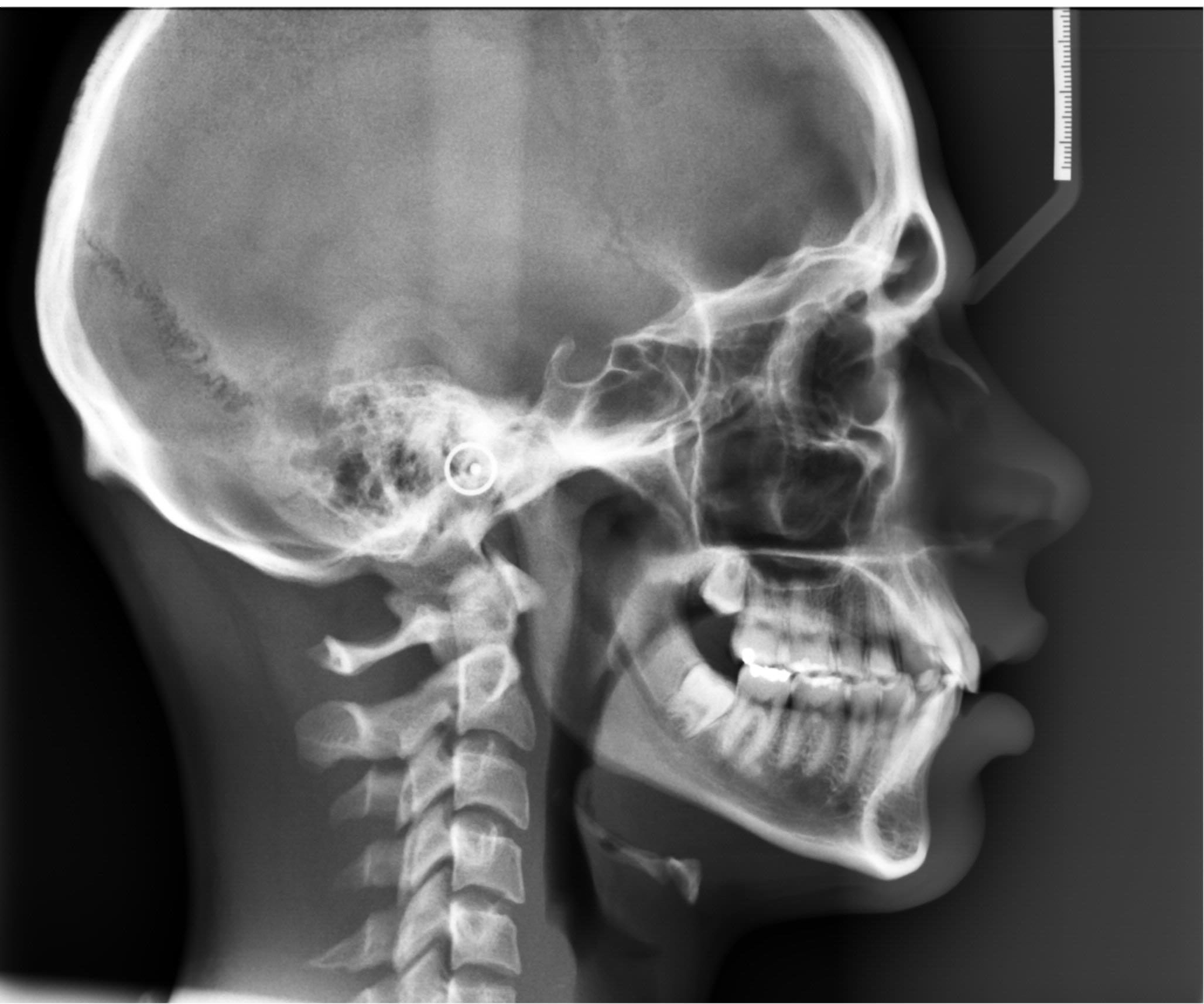 Exames ortodonticos